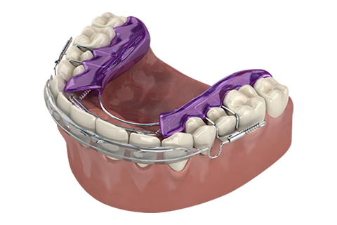 Inman Aligner Dental Treatment Northern Ireland